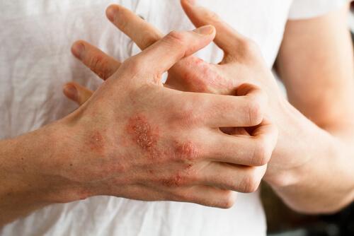 Was ist Schuppenflechte? Auslöser, Symptome und Therapieformen der Psoriasis